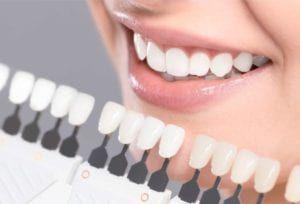 smiling woman teeth with veneers