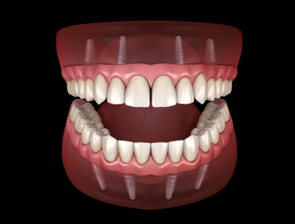 Graphic of how all-in-four dentures look when placed in the mouth