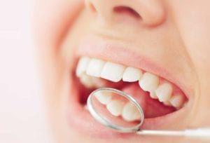 Dentist checking White Fillings