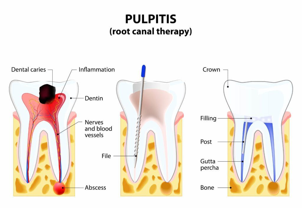 Steps of root canal