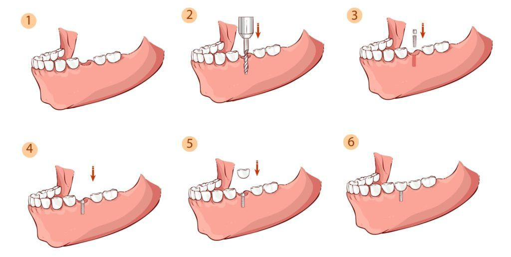 stages of dental implant placement