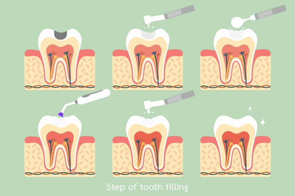 steps of tooth filling