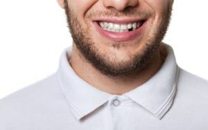 Man with missing tooth smiling